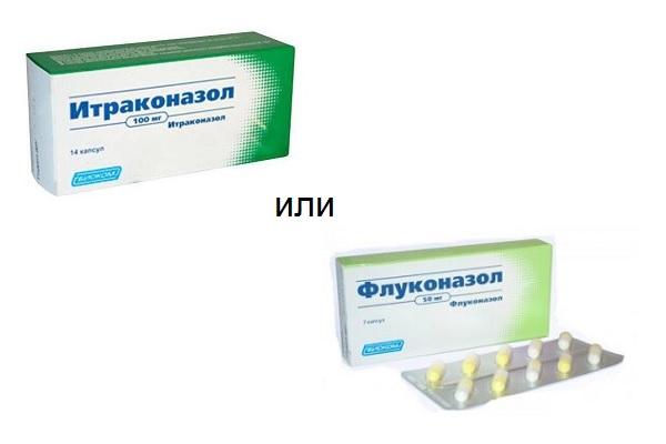 итраконазол или флуконазол