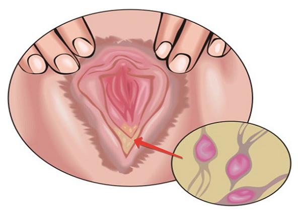 Предохраняет ли презерватив от трихоманиаза при вагинальном сексе
