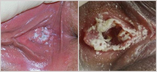 Признаки и симптомы молочницы